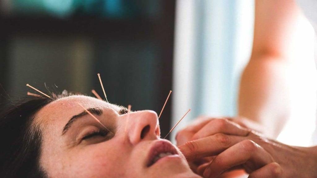 Akupuntur Wajah untuk Muka yang Lebih Cerah dan Sehat