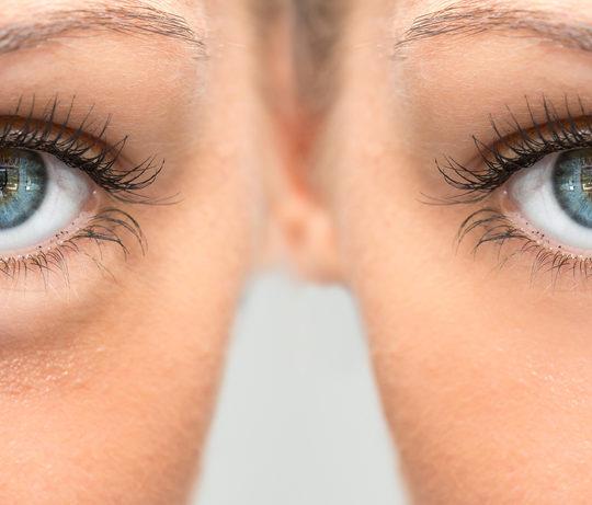 Trik Sederhana Mengatasi Kantung Mata Yang Mengganggu